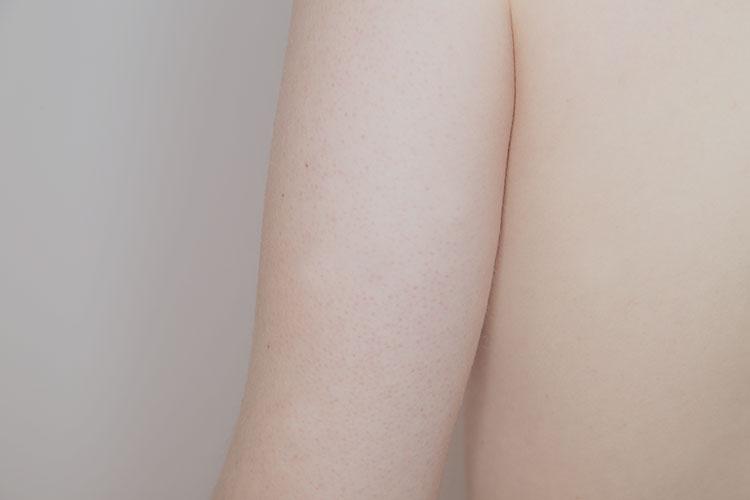 二の腕のブツブツ