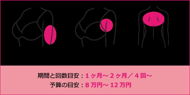 ブライダルエステ(部分痩せ)